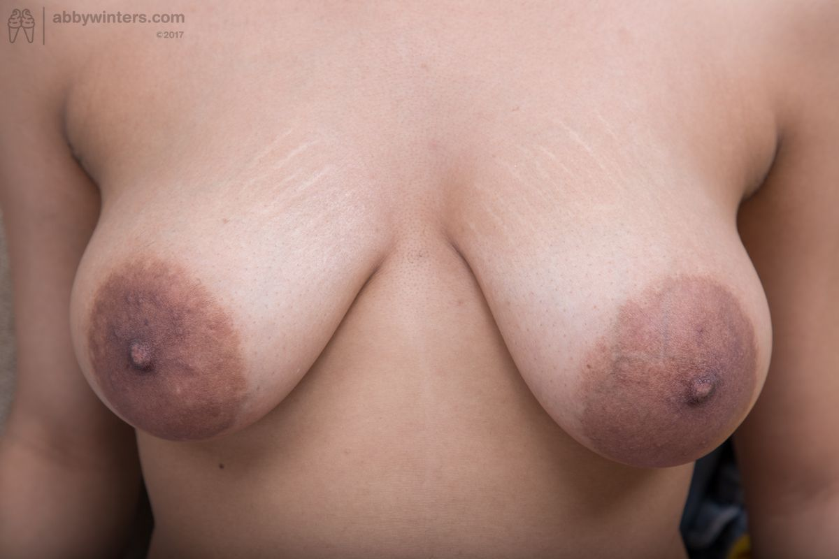 Final, Hairy areola topic